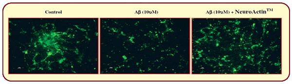 neuroactine-data-4